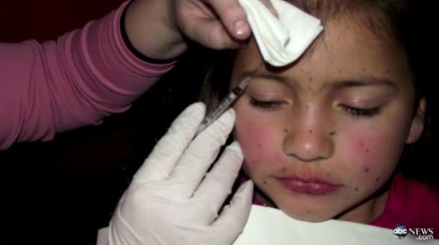 I A Injectat Botox La Numai 8 Ani Pentru Un Concurs De Frumusete