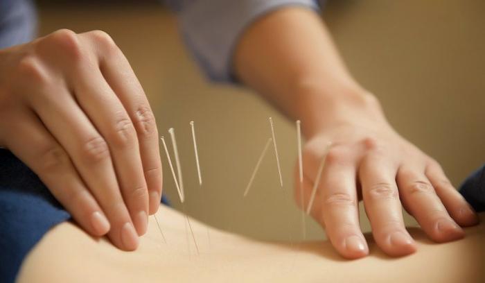 acupunctura pentru slabit constanta)