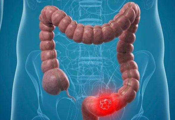 cancerul de colon se poate transmite