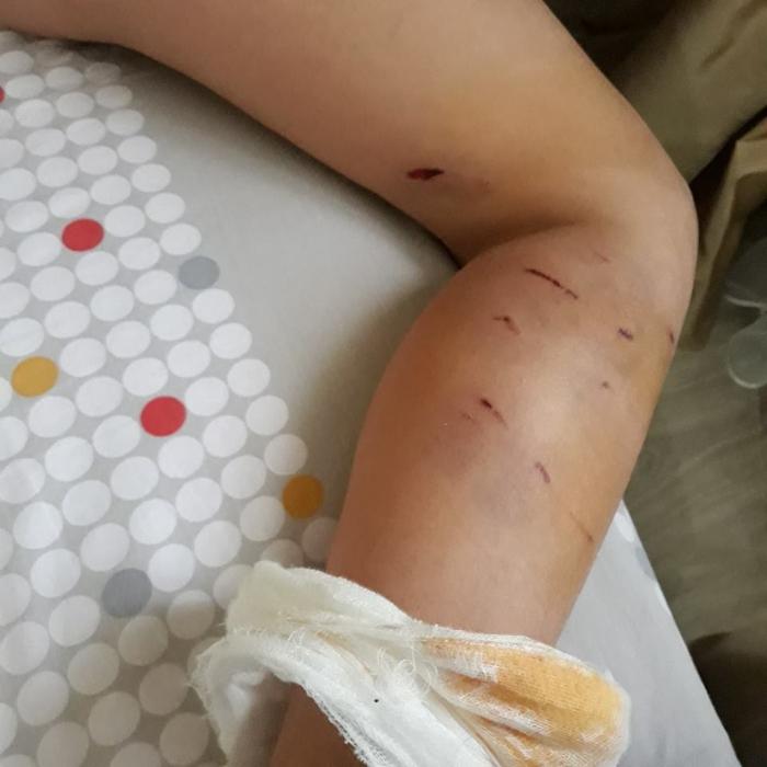 suflând răni pe picioare