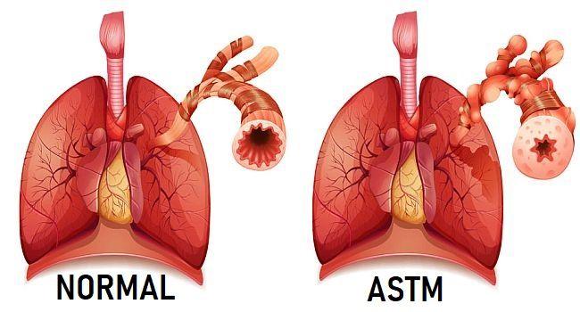 pierderea în greutate și astmul)