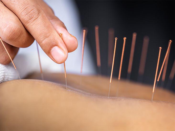 acupunctura și tratamentul varicozei)